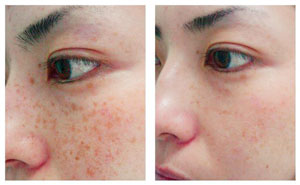 How To Prevent Age Spots On Face Naturally