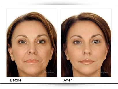 filler before-after 1
