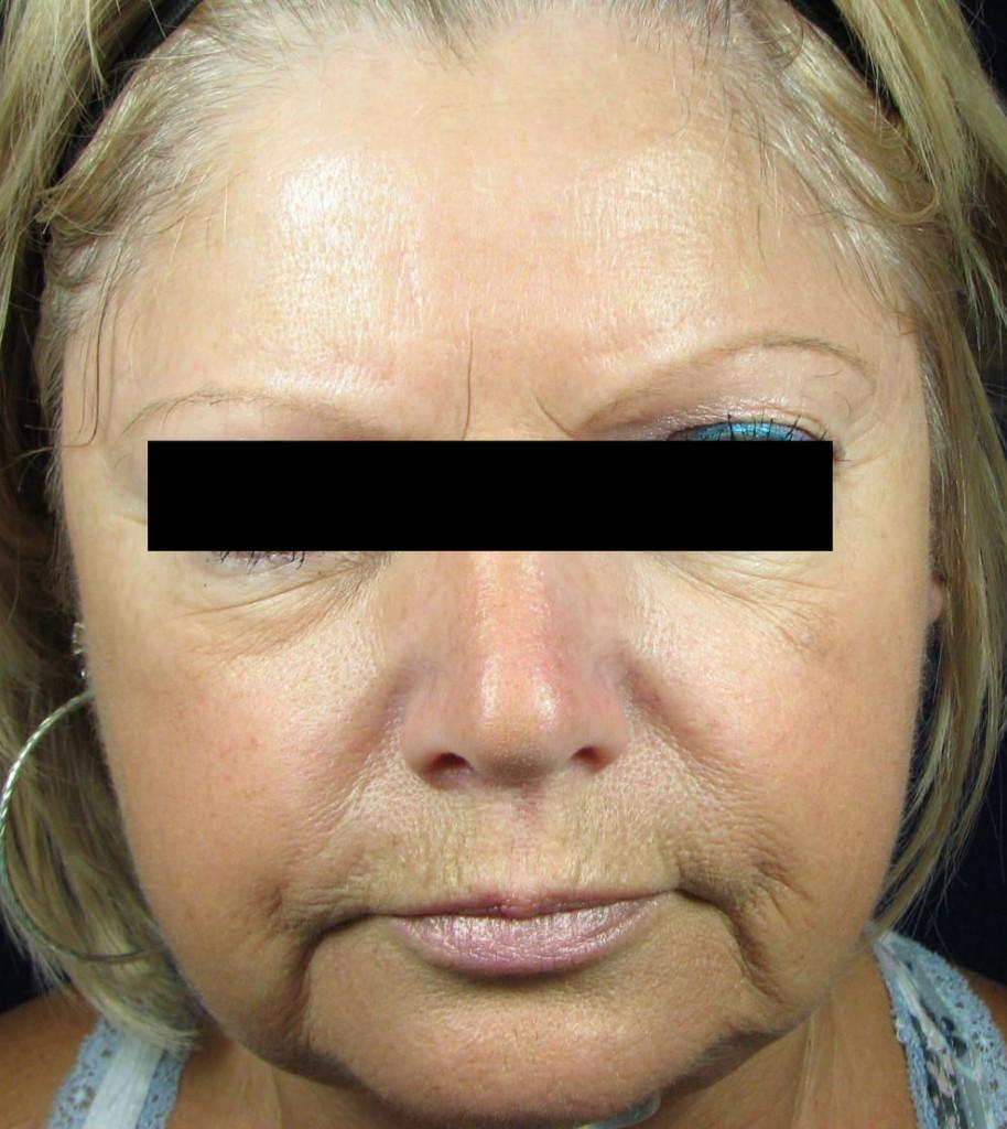"After 6 Treatments ""Actual Client"""