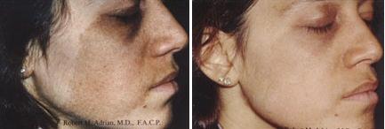 Laser Birthmark Removal Café Au Lait Spot Picture 1